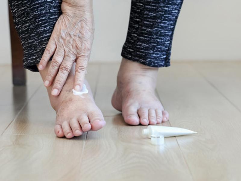 Pies-y-piernas-hinchadas-en-personas-mayores Pies y piernas hinchadas en personas mayores